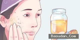 كيفية علاج الحروق وصفات طبيعية