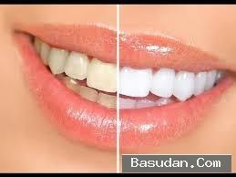 تبيض الاسنان كيفية تبيض الاسنان