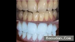 طريقه تبييض الاسنان وصفة سهلة