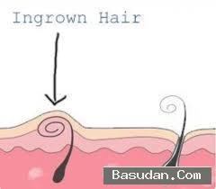 علاج الشعر الشعر الجلد ونقط