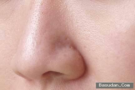 وصفة لتصغير مسام الوجه ماسكات