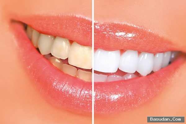 كيفية التخلص اصفرار الأسنان علاج