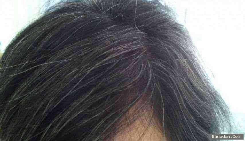 القضاء الشعر الابيض تخلصي الشعر
