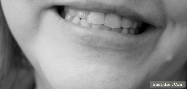 كيفية إزالة السواد الفم طريقة