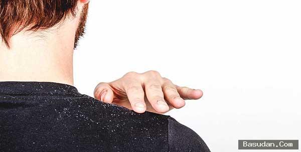 أسباب قشرة الشعر علاج قشرة
