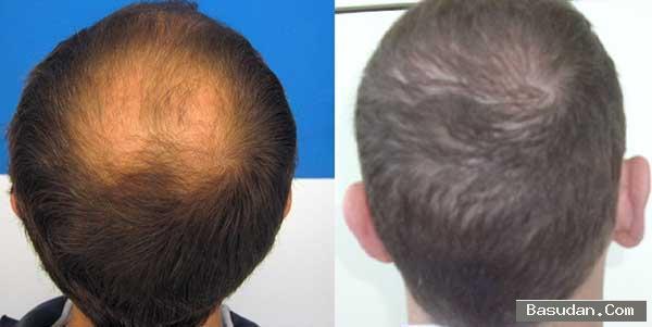طريقه زراعة الشعر الطبيعي كيفية