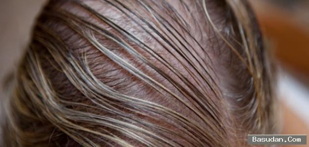 لزيادة كثافة الشعر