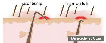 التخلص الشعر الجلد نصائح للوقاية
