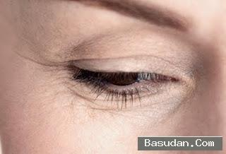 وصفات طبيعية للقضاء تجاعيد العينين