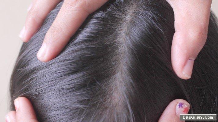 وصفة لعلاج قشرة الشعر ماسك