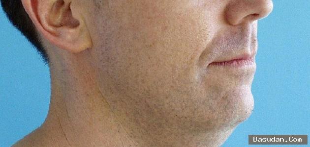 التّخلص دهون الوجه