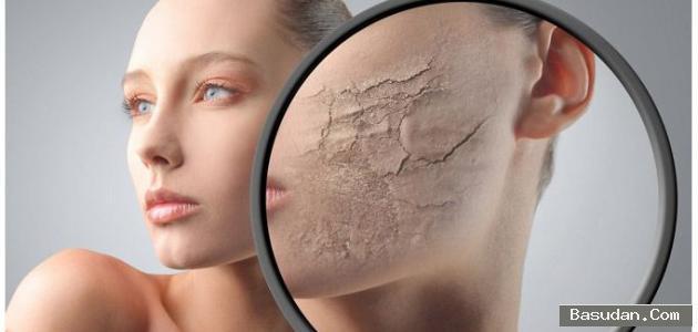 نصائح لعلاج جفاف الوجه