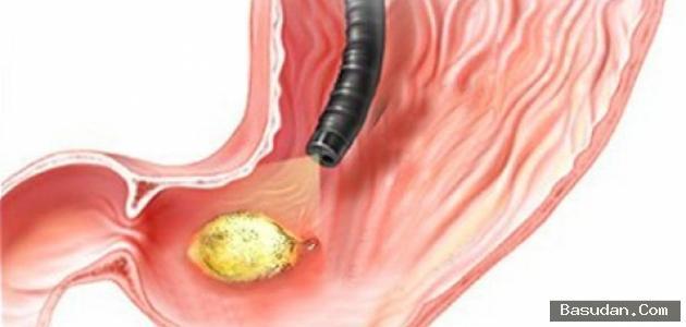 التهاب جدار المعدة