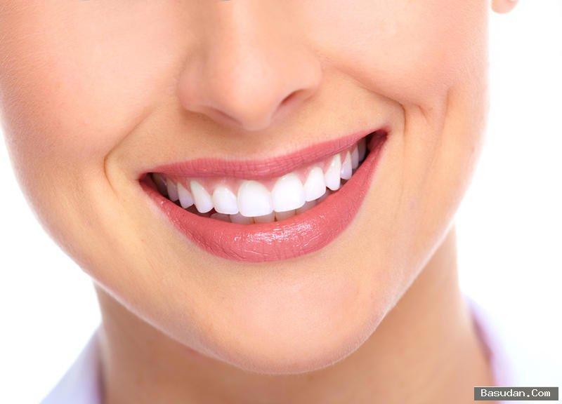 علاج منزلي لتبييض الأسنان