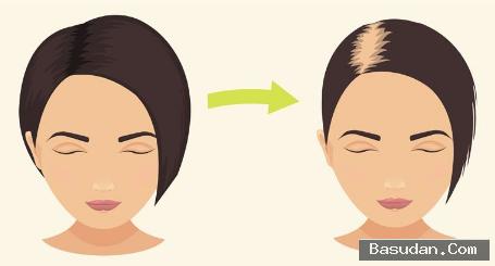 اسباب تساقط الشعر الولادة